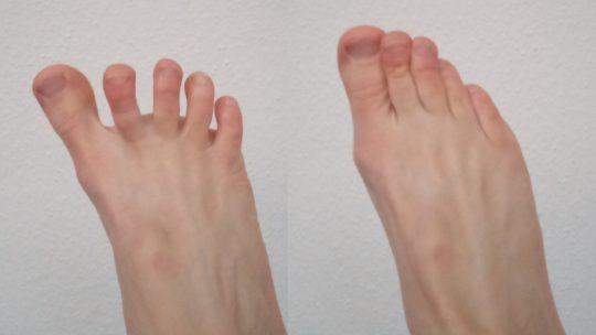 Die Abduktion und Adduktion der Zehen